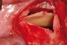 Le cloisonnement du bas-fond sinusien par un bloc osseux cortical a-t-il un intérêt lors d'un sinus-lift ?