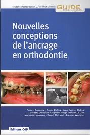 Nouvelles Conceptions de lancrage en orthodontie