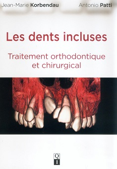 Quintessence dents incluses