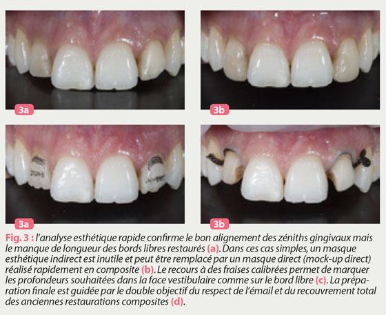 alignement-des-zeniths-gingivaux