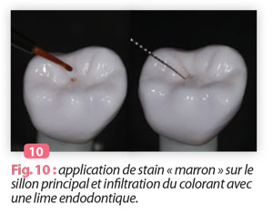 application-de-stain-marron