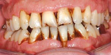 coloration des dents