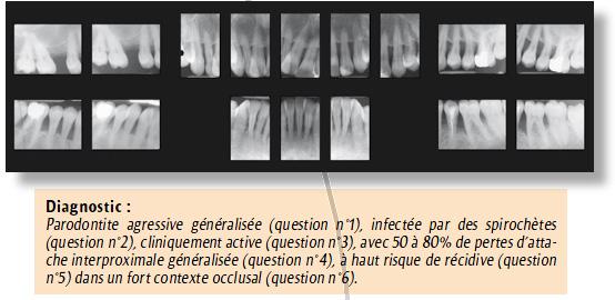 Diagnostic En Parodontie