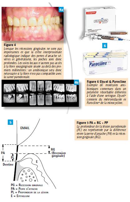 flagyl antibiotique dentaire clomid j5 j10. Black Bedroom Furniture Sets. Home Design Ideas
