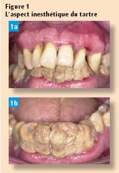 Lithotritie parodontale non chirurgicale - Comment enlever le tartre ...