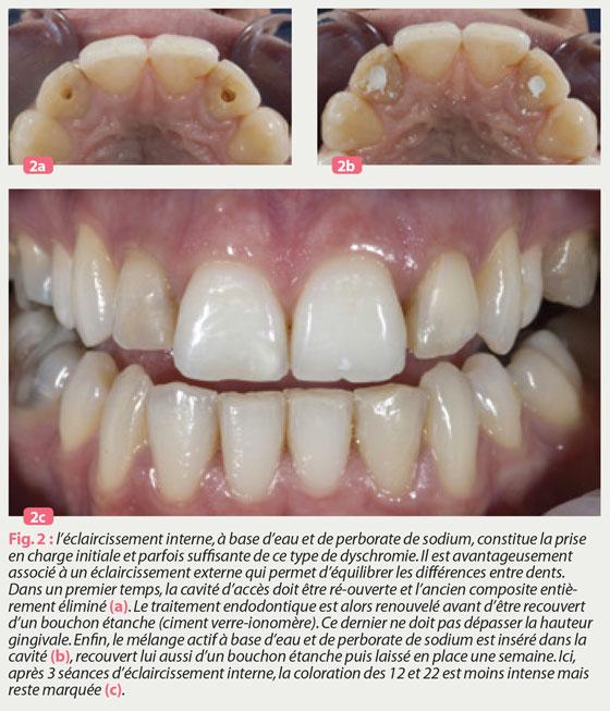 bouchon-étanche-traitement-endodontique