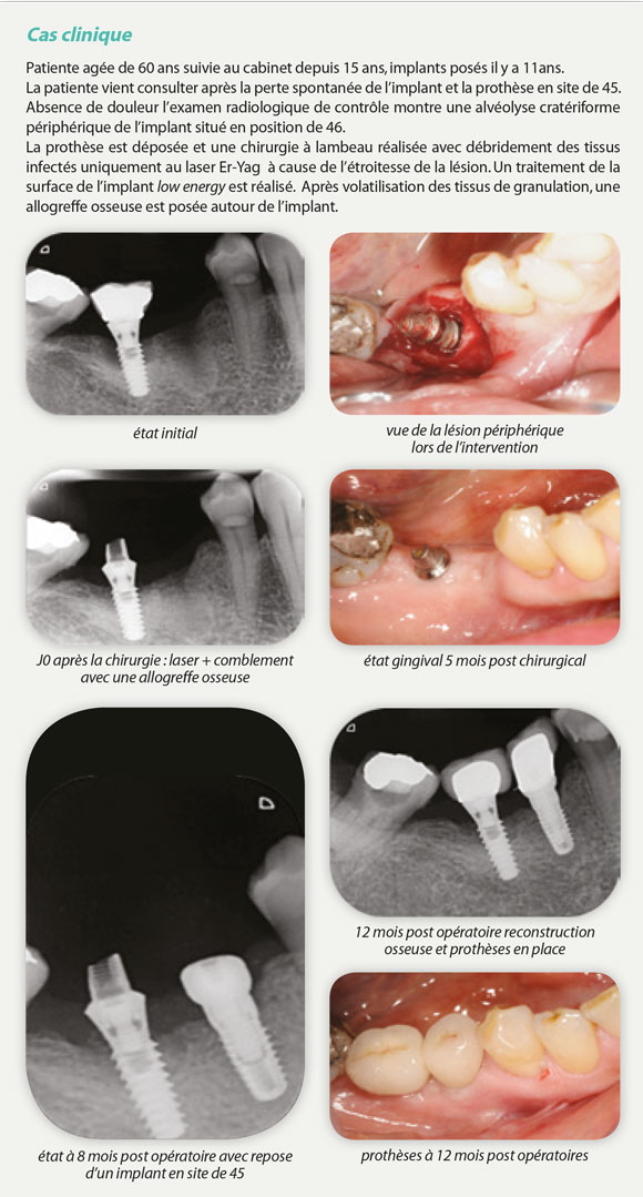cas-clinique-implants