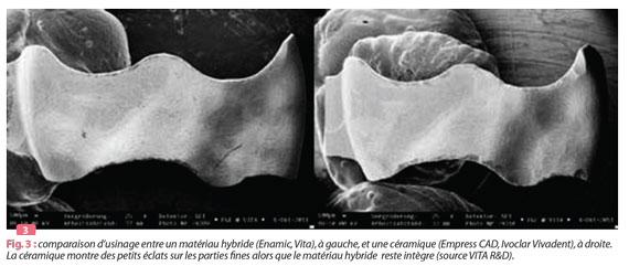 comparaison-materiau-hybride-et-ceramique