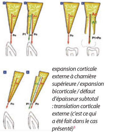 expansion-corticale