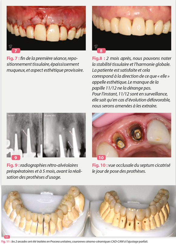 extraction-greffe-os-implants