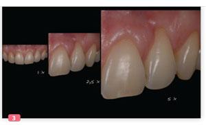 grossissement dentaire