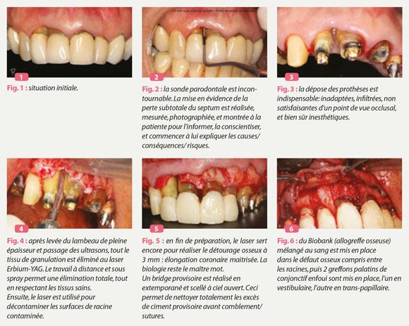 laser-erbium-yag-et-parodontologie-limite