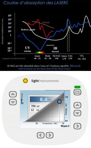 light-instruments-erbium-yag