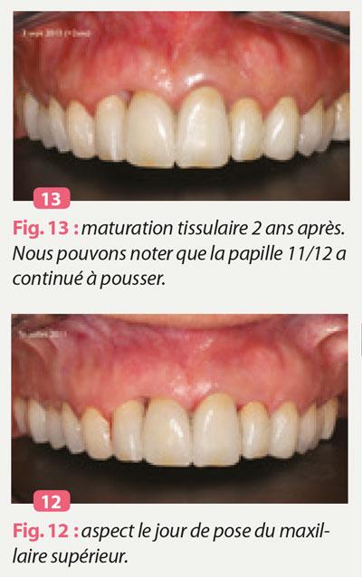 maturation-tissulaire