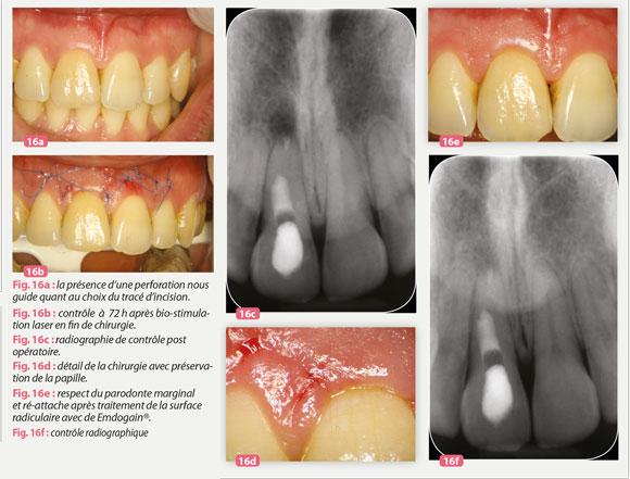 parodonte-marginal
