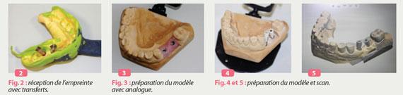 preparation-du-modele