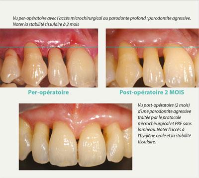 protocole-microchirurgical-et-prf-sans-lambeau
