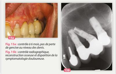 reconstruction-osseuse