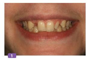 sourire-initial-apres-traitement-odf