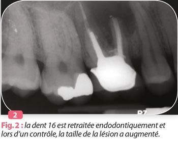 traitement-endodontique