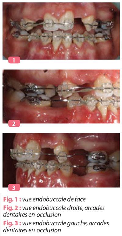 vue-endobuccale-arcade-dentaire-en-occlusion