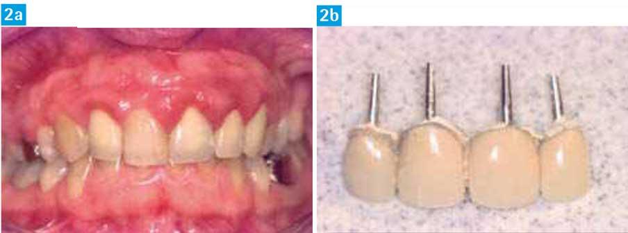 Environnement-dento-gingival