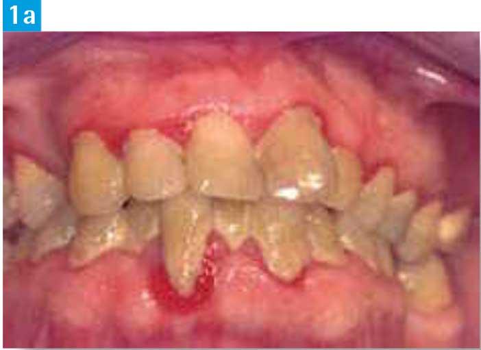 Pathologies-parodontales