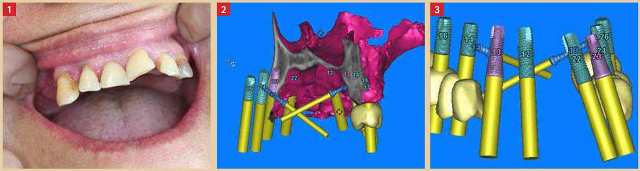 Fabrication-du-guide-chirurgical