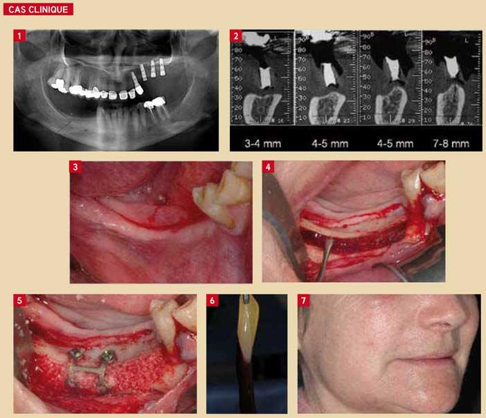 l'atrophie-mandibulaire-posterieure