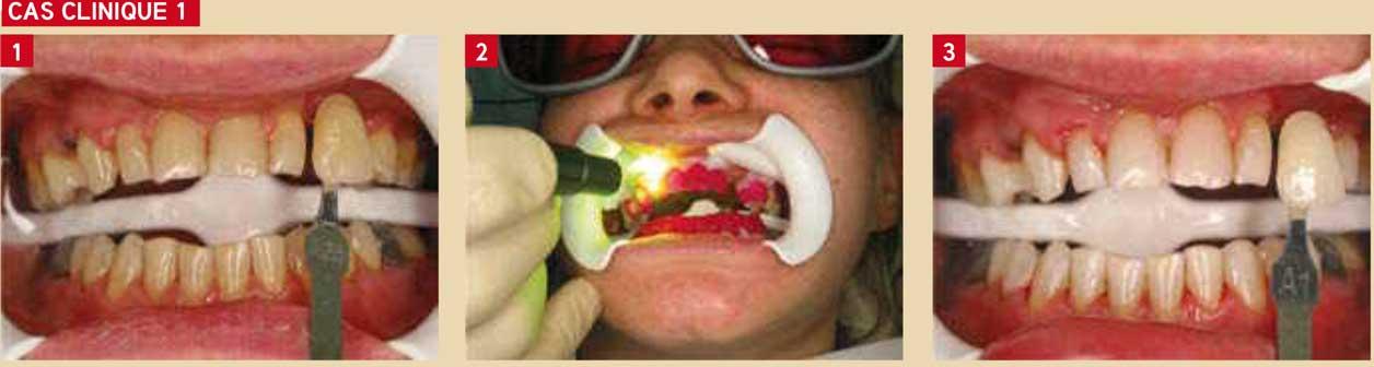 éclaircissement-dentaire