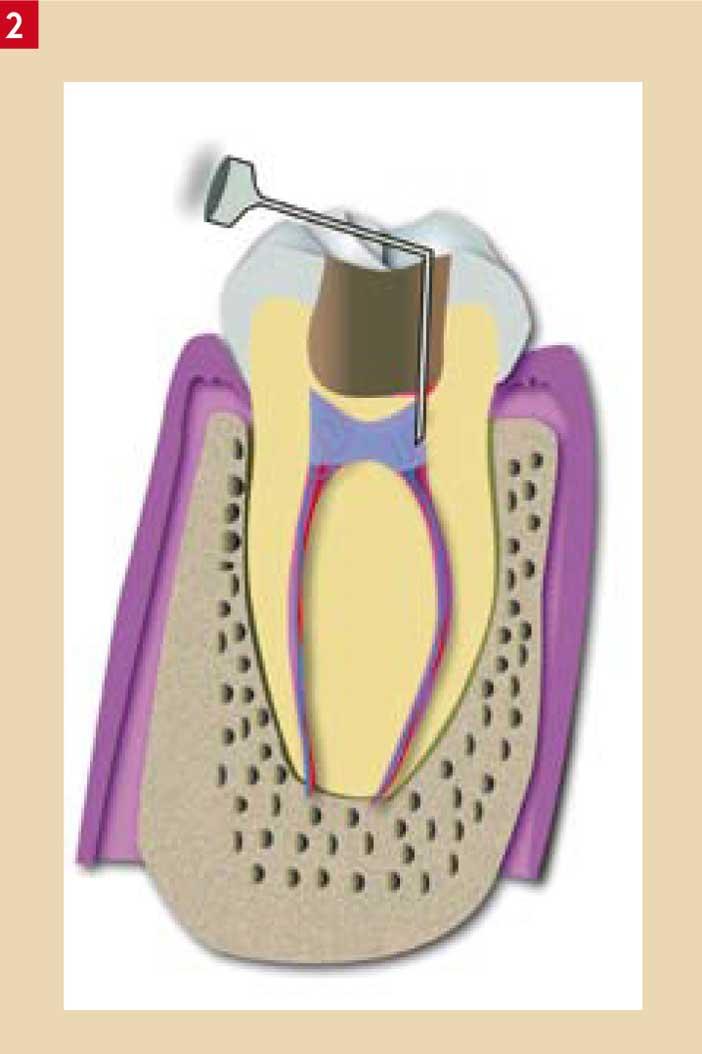 duree anesthesie dentaire