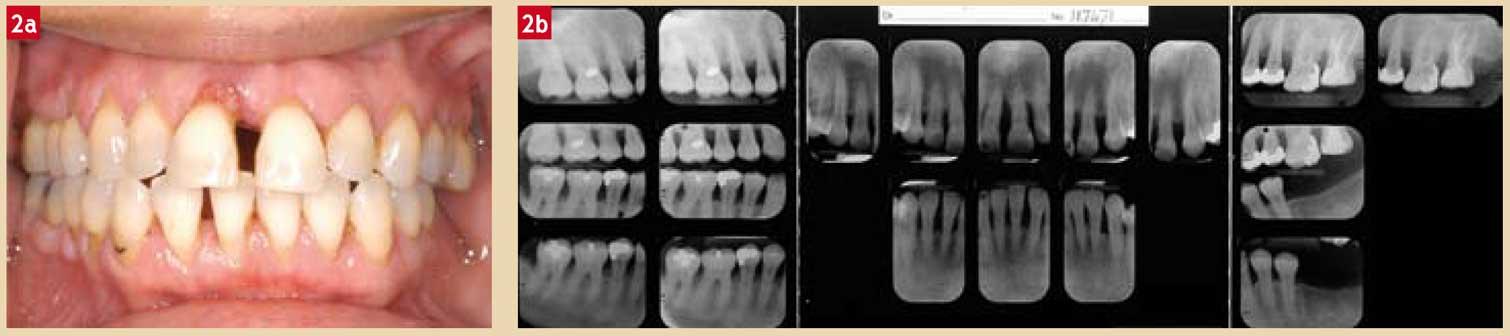 Bilan-radiographique