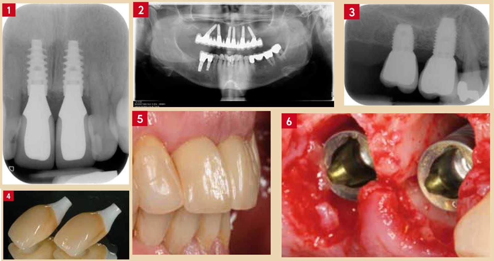 Deux-implants-courts-et-de-large-diamètre