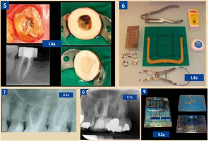 Endodontie-versus-Implantologie