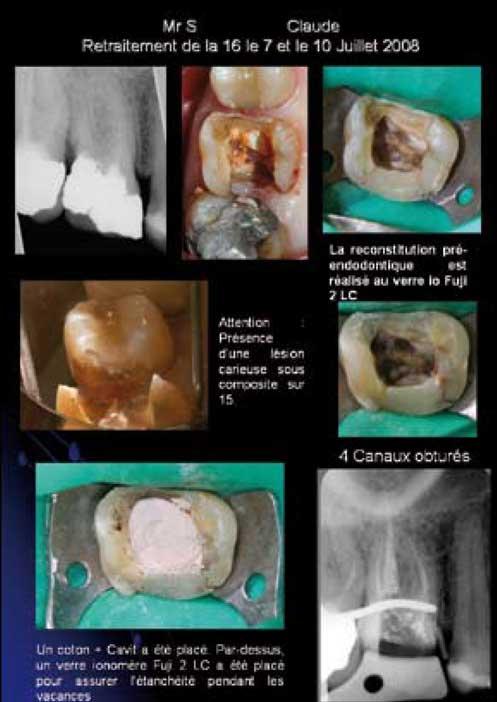 Fiche-de-traitement-endodontique