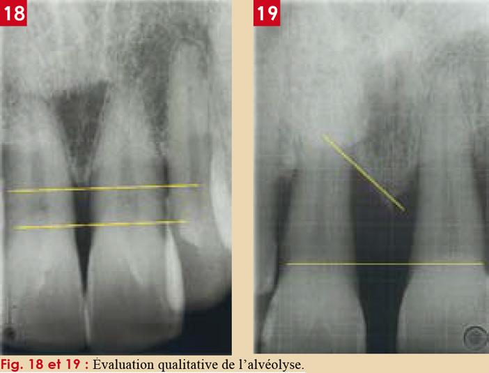 Interprétation-des-radiographies