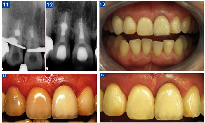 L'éclaircissement de la dent