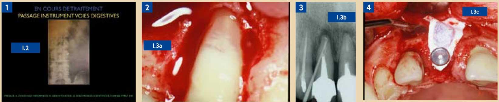 L'urgence-en-endodontie