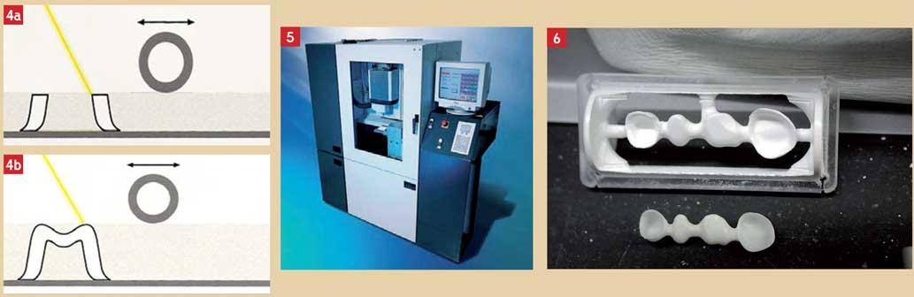 La-microfusion-laser
