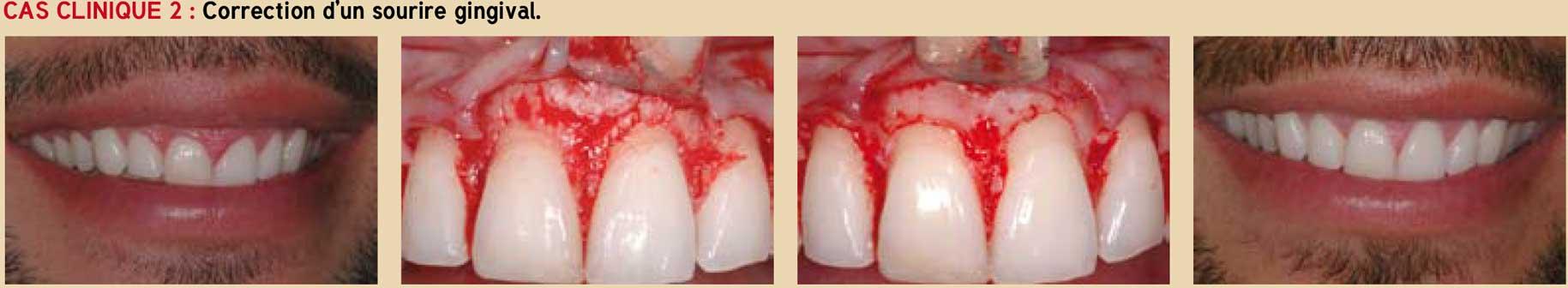 Le-diagnostic-parodontal