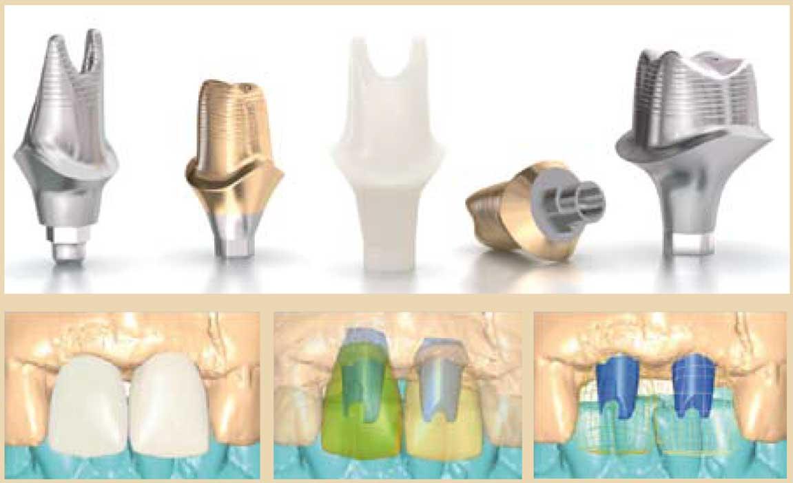Le-pilier-numérique-en-implantologie