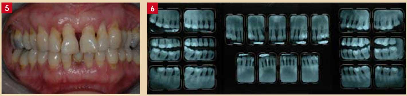 Les-antiseptiques-en-parodontologie