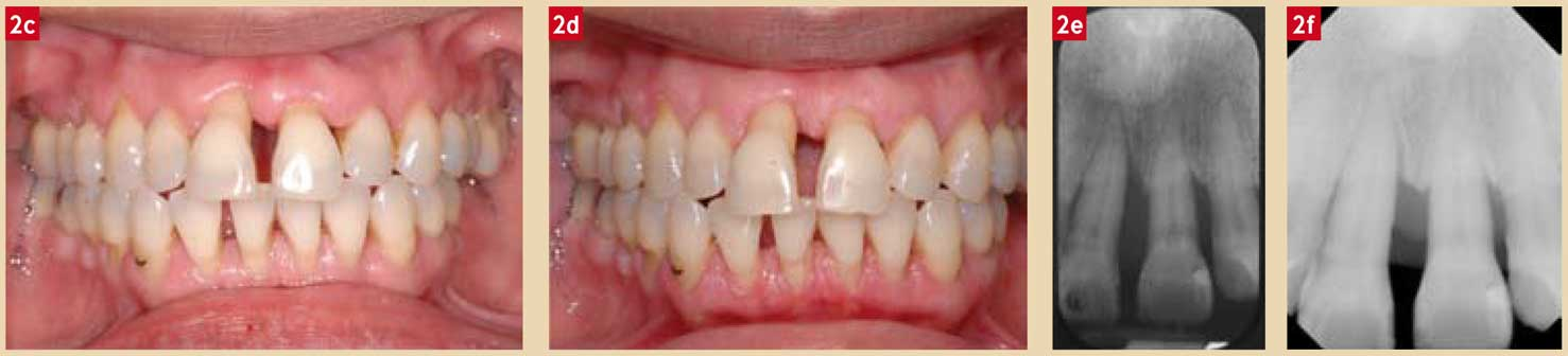 Les-lésions-parodontales