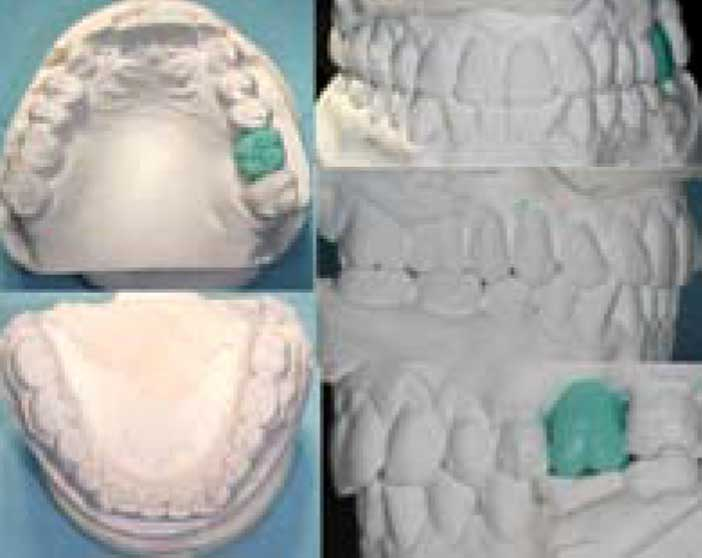 Modèles-d'étude-et-wax-up