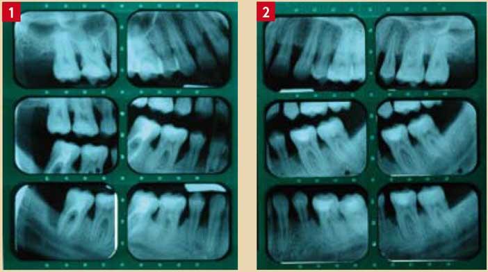 Parodontite-agressive-généralisée