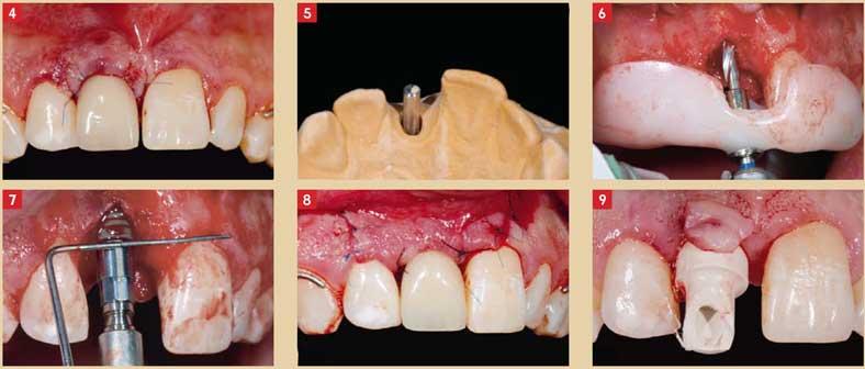 Un-implant-Straumann