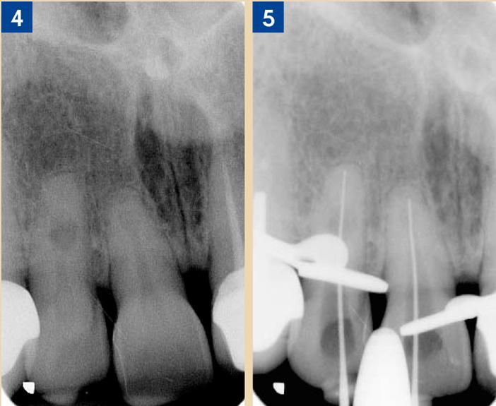 Un-traitement-endodontique
