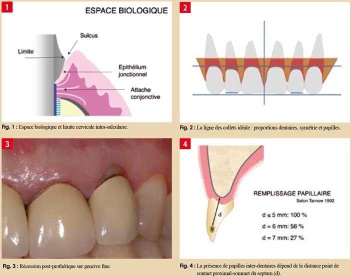 Unité-dento-gingivale