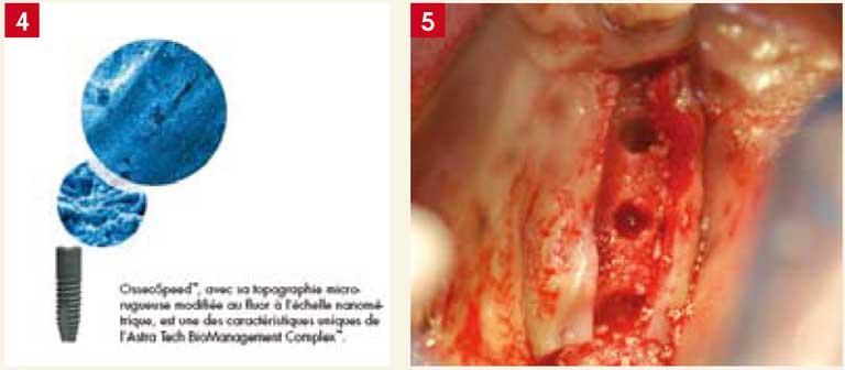diamètres-des-implants