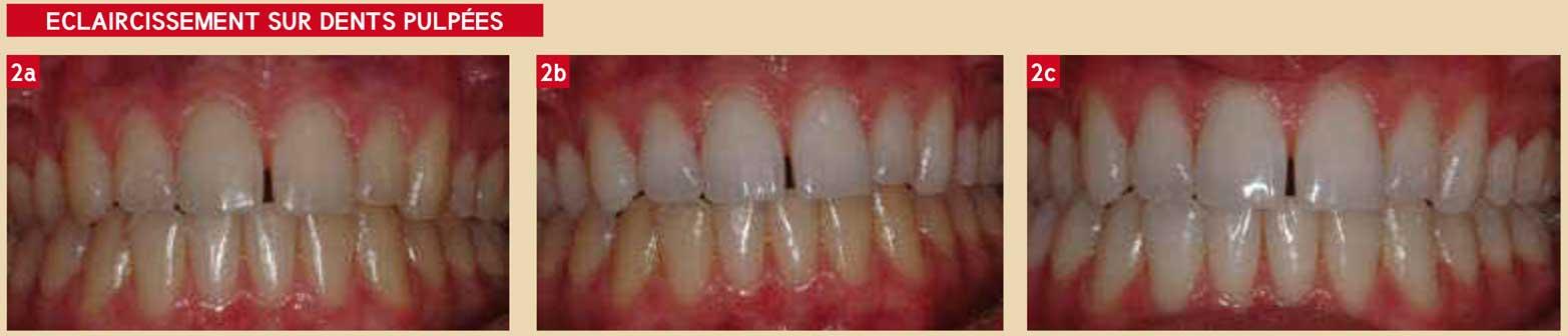 eclaircissement-sur-dents-pulpées